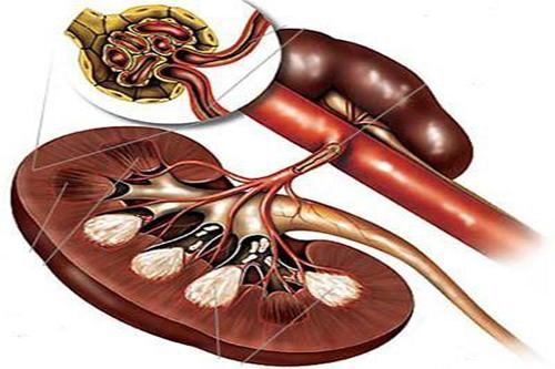 肾动脉狭窄高血压治疗