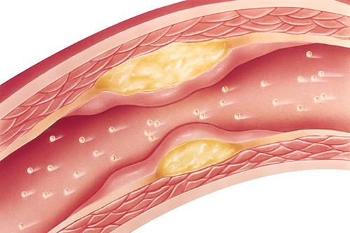高血压与动脉粥样硬化关系