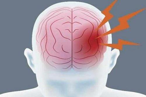 高血压易引起脑出血