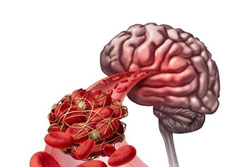 高血压危害大脑